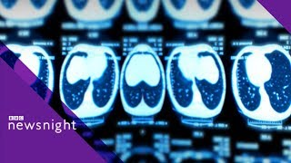 Lung cancer health checks: Do they work? - BBC Newsnight