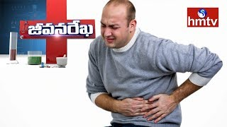Dr Ramakrishna Reddy About Gastrointestinal Tract Disorders | Darasani Homeo Clinic | hmtv News