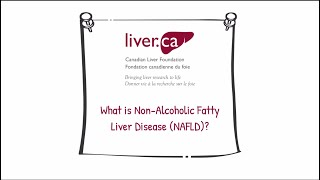 Non-Alcoholic Fatty Liver Disease (NAFLD) - Liver Disease Educational Video Series