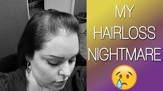 MY HAIRLOSS NIGHTMARE