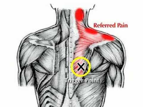 Upper back shoulder blade pain
