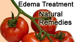 Edema Treatment tips - Edema Treatment Natural Remedies