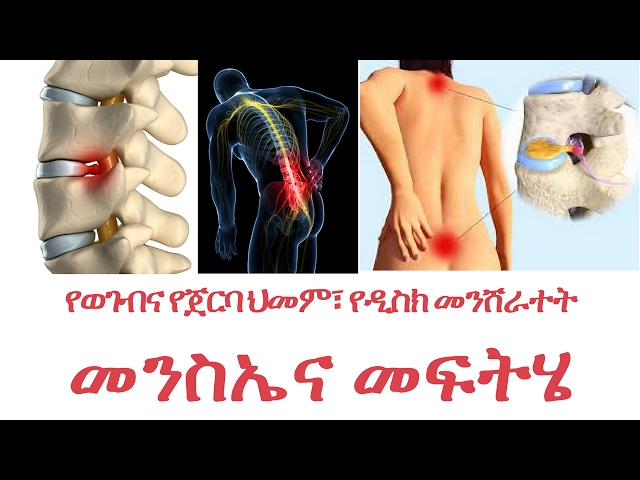 [ Amharic ] Back Pain Causes  and its solution