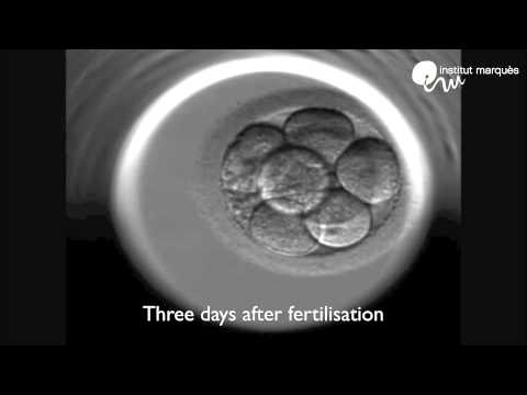 Music enhances In Vitro Fertilisation