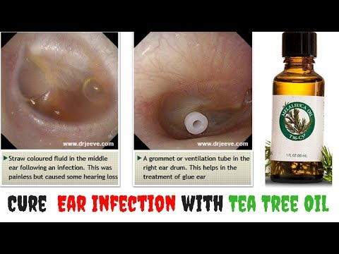 How to Get Rid of an Ear Infection with Tea Tree Oil - clickbank review