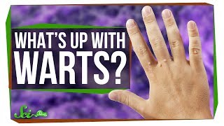 What's the Deal with Warts?