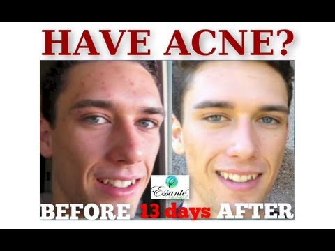 Got acne? Here is your ORGANIC 100% toxic-free solution, Chandler Levine shares his secret!