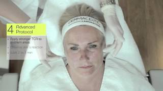 Dermaceutic Cosmo Peel Treatment - Long Video
