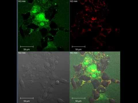 Pumping Fluorescent Nanoparticles into live Cancer Cells - 2