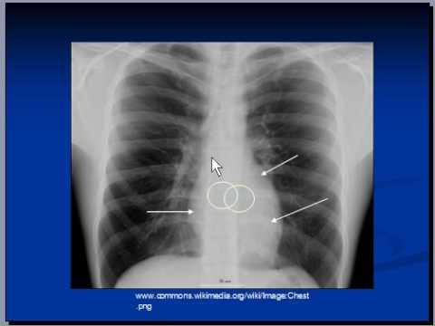 chest x-ray, Mediastinal structures -mediastinum 2/2 ...