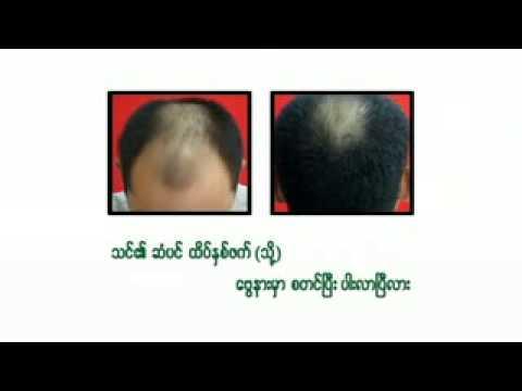 101 Hair follicle Nourishing Tonic