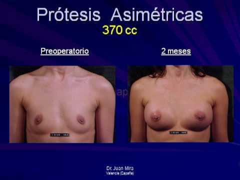A-06 - Resultados - La mamaplastia Aumentativa Natural Asimétrica (A.N.A.) Music Videos