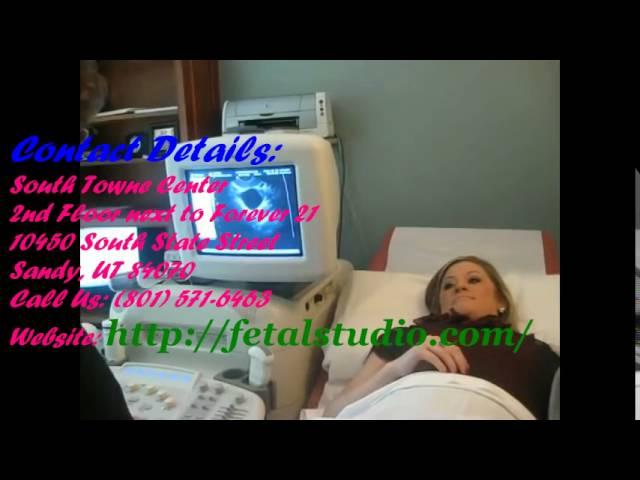 [Prenatal ultrasound] Video