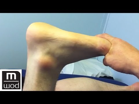 Case study ankle rom | Feat. Kelly Starrett | MobilityWOD