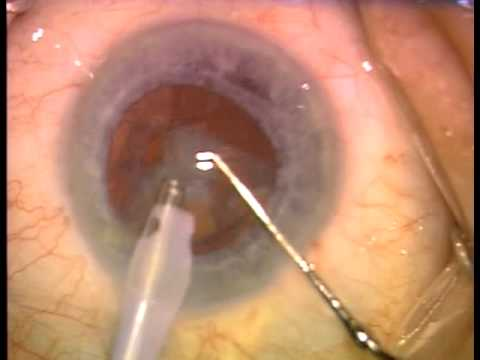 Cataract Eye Surgery-Actual Video!!