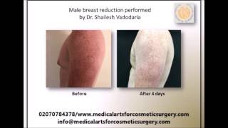 My personal story of revision gynecomastia performed by Dr. Shailesh Vadodaria