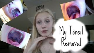 My tonsil removal and experience