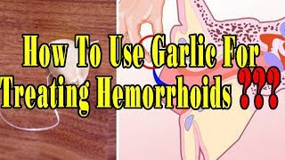 How To Use Garlic For Treating Hemorrhoids - Natural health cures