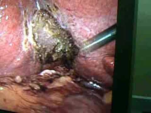 Fatty Liver - YouTube