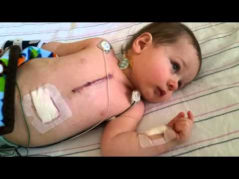 48 Hours After Open Heart Surgery| Home! video