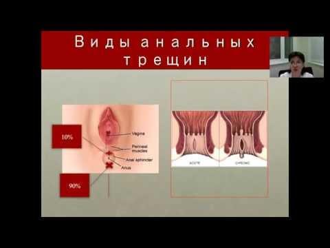 izrail-analnaya-treshina