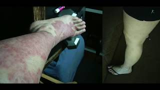 A Test On Sorion Cream for Psoriasis