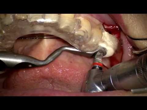 Straumann implant 3.5mm drilling & bone graft with guided surgery system