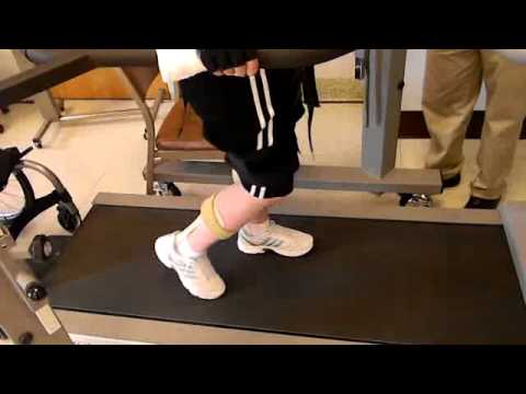 Paraplegic Walking with the Bioness Harness and Treadmill System