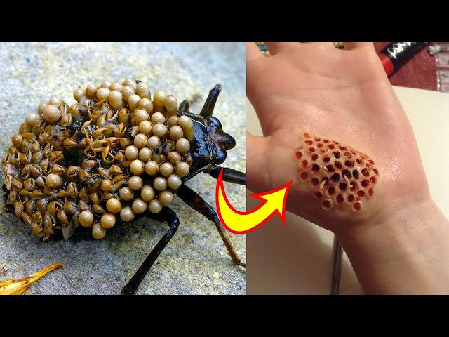 Play this video 10 Most Dangerous Bugs In The World