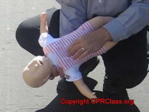 Choking Infant Treatment Treatment For a Choking Infant