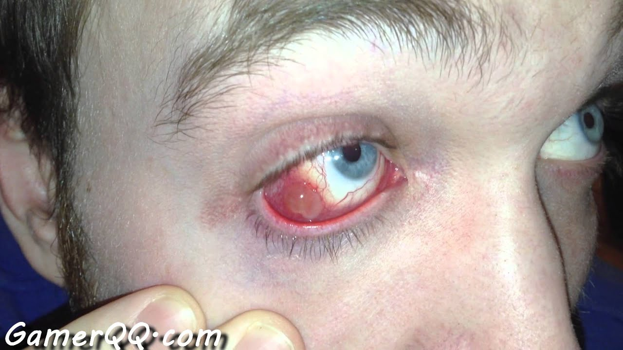 Insane Eye Infection - Infected Scleral Buckle - YouTube
