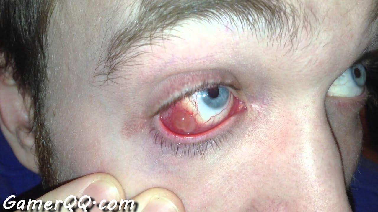 Methicillin-resistant Staphylococcus aureus (MRSA ...