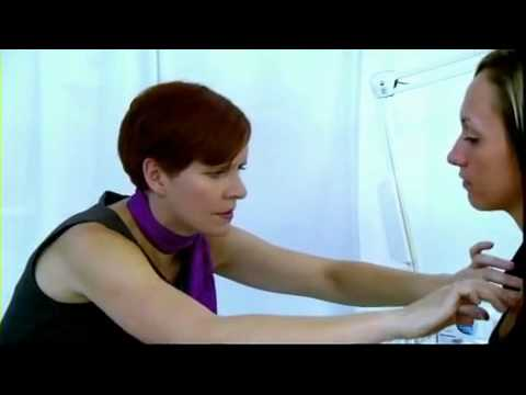 Sydney Stretch Marks, Keloid Scars, Acne Scars Treatment MD Cosmedical Solutions