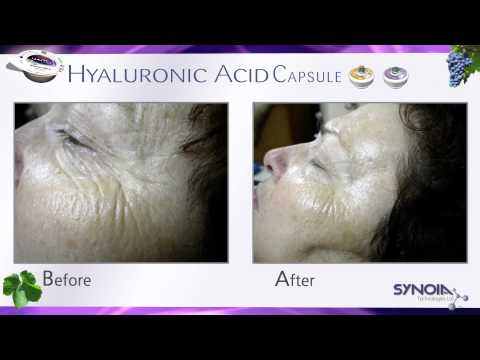 WISHPro by Synoia - Hyaluronic Infusion Capsule