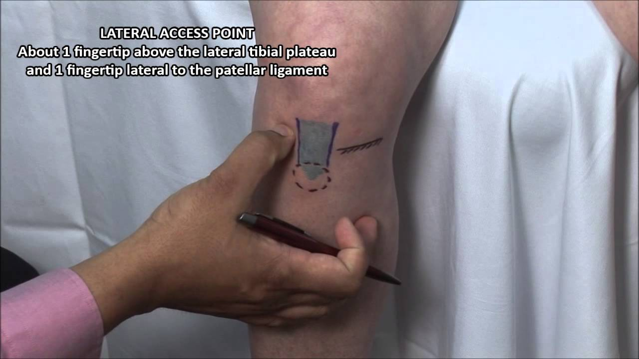 knee steroid injection medial approach