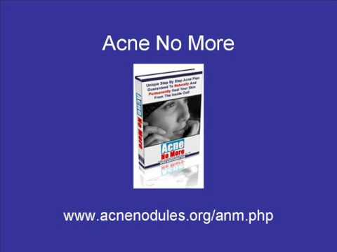 Acne Nodules - A Holistic way to cure acne