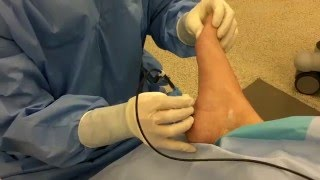 Radiofrequency Nerve Ablation for Heel Pain
