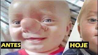 """Lembra do bebê chamado de """"Pinóquio""""? Veja como ele está hoje!"""