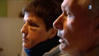 Yonne : après son agression, un couple d'éleveurs témoigne