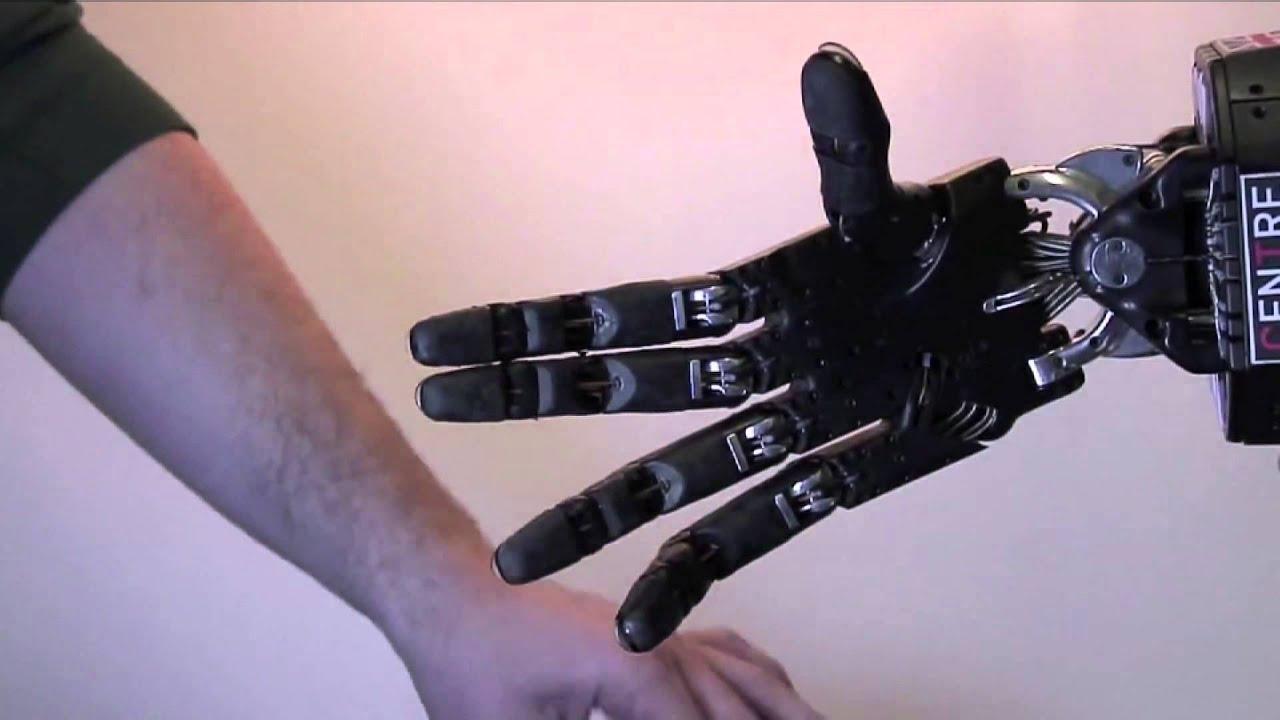 Первый в мире человек с механической рукой: chyyr 29
