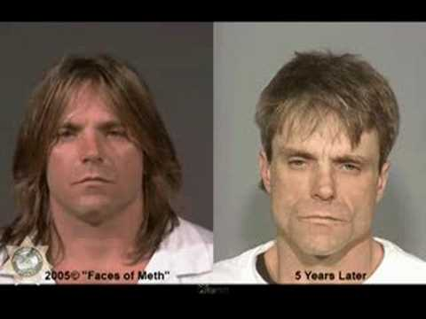 Faces of Meth Before And After Mug Shots - Educational Video