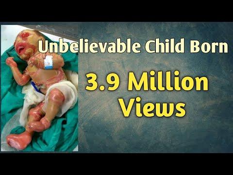 Un Beliveable Baby Born In Pakistan video