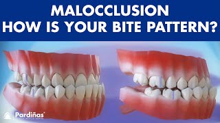 Malocclusion classes ©