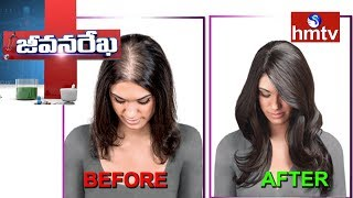 Treatment for White Hair  | ANNO'S Director Anuradha | Jeevana Rekha