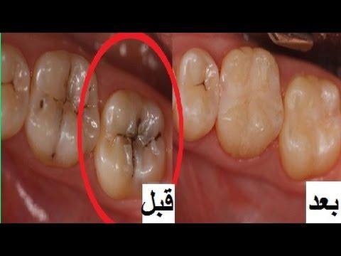 وصفة لازالة تسوس الاسنان والجير فى يوم واحد