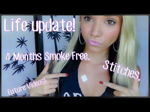 Life Update! 4 Months Smoke Free, & Stitches?! | BreeAnn Barbie