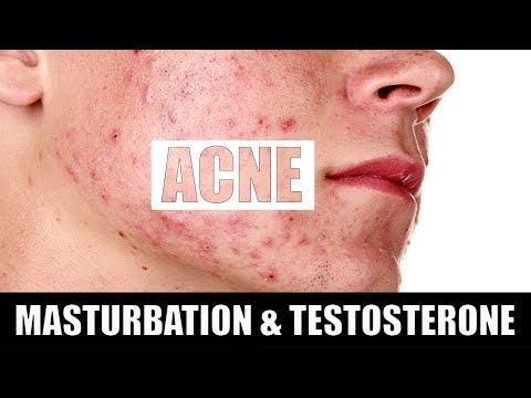 MASTURBATION or SEX (सेक्स या मैथुन) causes Acne? TESTOSTERONE boost [SCIENCE] thumbnail