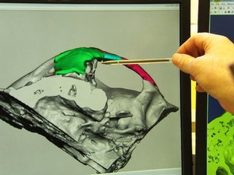 3D printer used to rebuild man's face