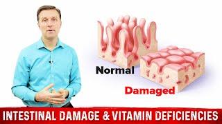 Intestinal Damage & Vitamin Deficiencies