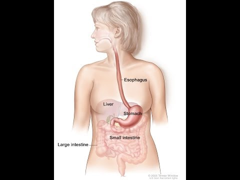 Stomach Cancer Simplified